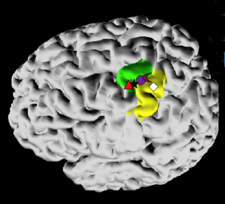 Figure 1: Location of peak motor-related activity for fMRI