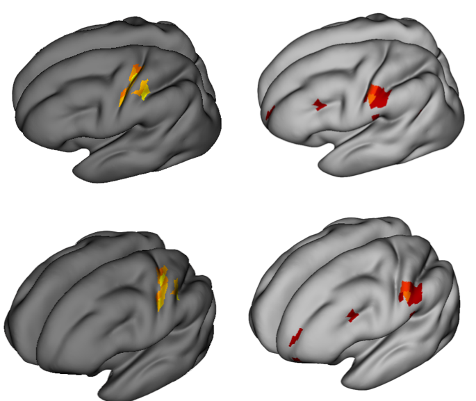 Figure 2 EEG source activity after stimulus