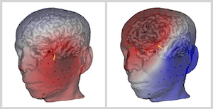EEG scalp voltage projected on a 3D head