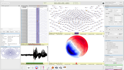 EEG software